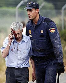 Uno de los heridos. | Reuters